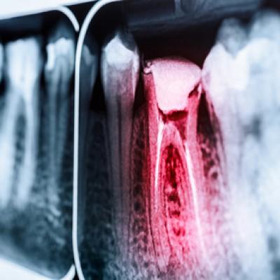 Chancen auf den Zahnerhalt aus der Sicht der mikroskopischen Endodontie