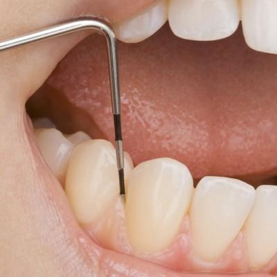 3P Profi Kurs Prävention – Prophylaxe – Parodontologie