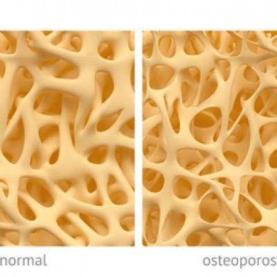 Antiresoptiva – Therapie, Biphosphonate und Denosumab