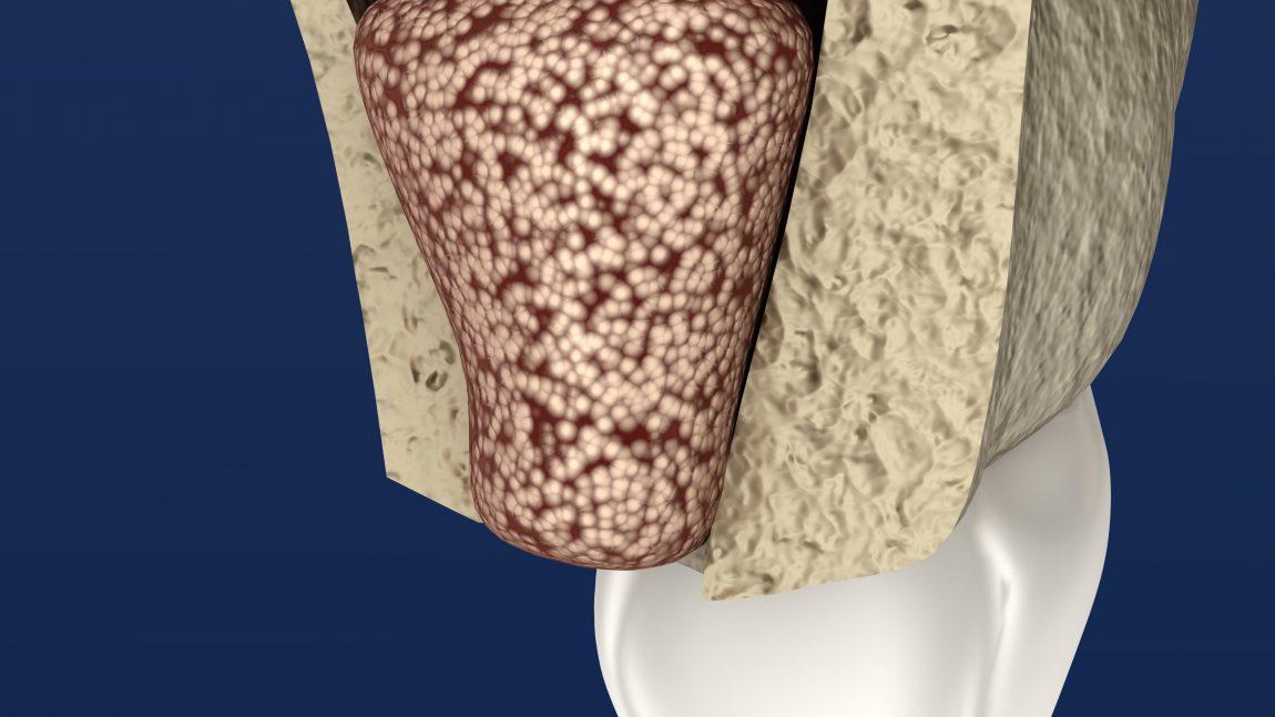 Knochenaugmentation